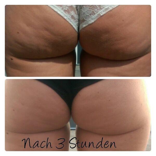 Cosmetic Messe München Bye Bye Cellulite Creme überwältigende Ergebnisse